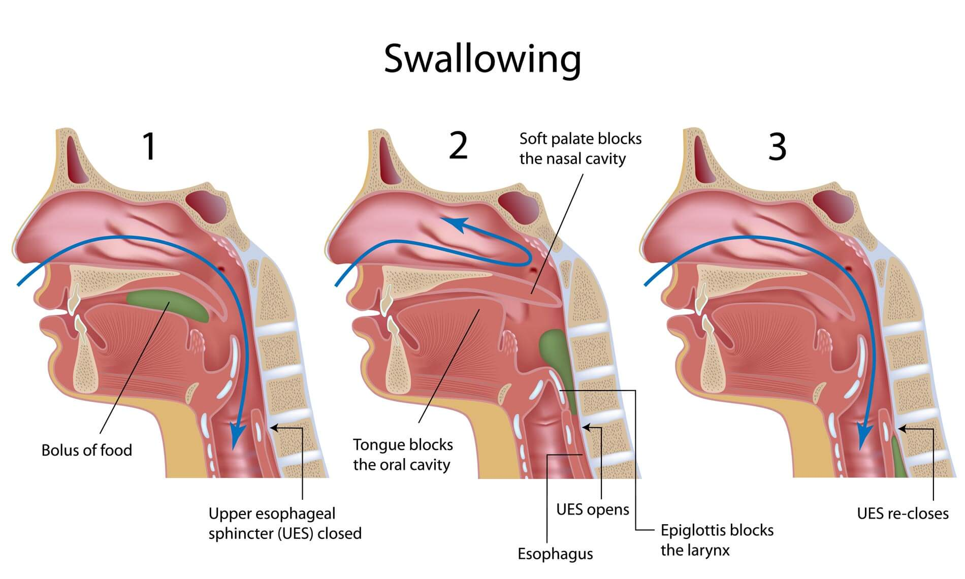 Suck swallow respiration in normal infants