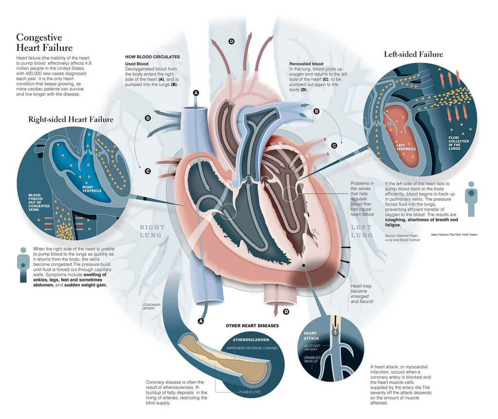 Congestive Heart Failure 03